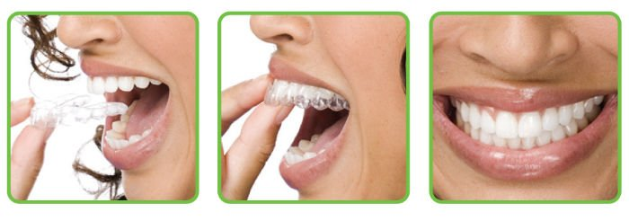 Clear Aligners Clear Correct Invisalign